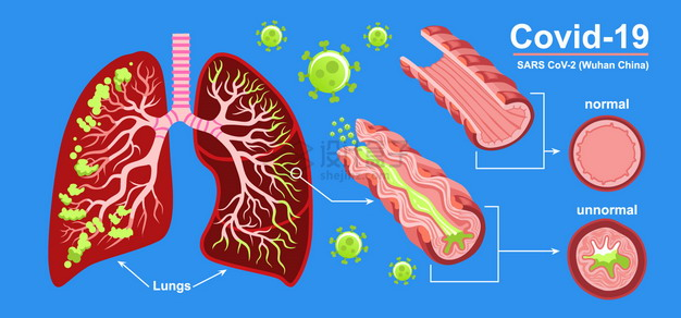 新型冠状病毒对人体肺部的影响插画png图片素材 健康医疗-第1张