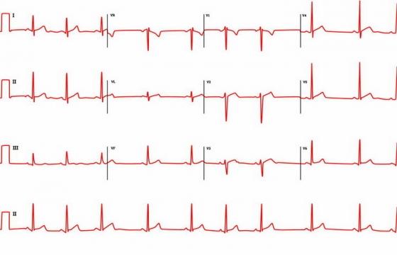 4条红色心电图心跳图图案png图片免抠eps矢量素材