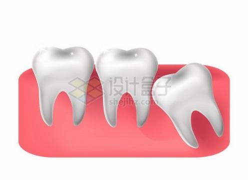 牙齿解剖图阻生智齿464044png图片素材