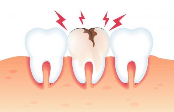 牙齿破裂示意图牙科牙齿保健免抠矢量图片素材