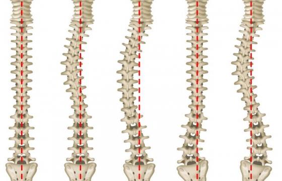 5种不同形态的脊椎弯曲脊柱图片免抠素材