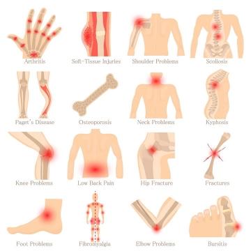 16款骨科人体疼痛位置示意图图片免抠素材