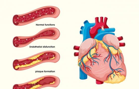 心脏心肌梗塞血管阻塞示意图医疗医学疾病配图图片免抠素材
