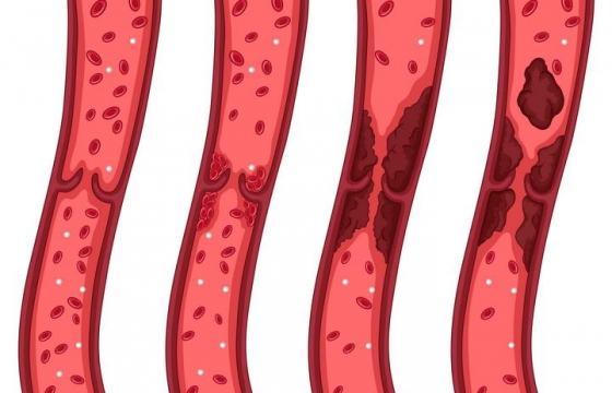 脑血栓血管堵塞过程示意图免扣图片素材
