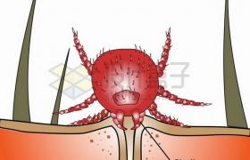 螨虫叮咬后的症状图png图片素材