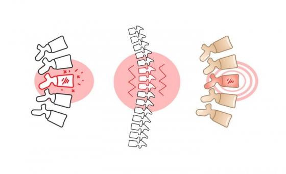 手绘颈椎病脊椎弯曲骨骼图片免抠素材