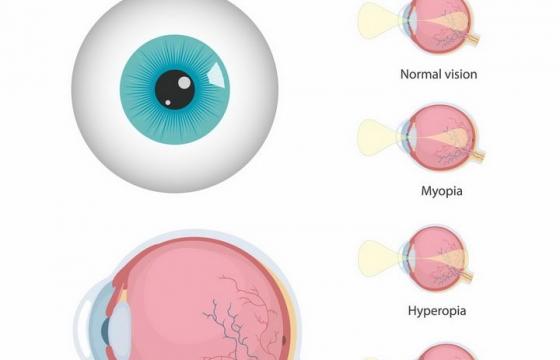 人体眼球结构近视眼远视眼散光眼原理示意图png图片免抠矢量素材