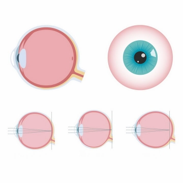 简易人体眼球结构近视眼远视眼散光眼原理示意图png图片免抠矢量素材